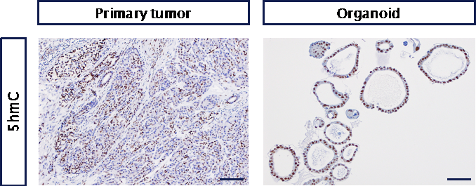 Fig. 1: Immunohistochemistry staining of 5-hydroxy-methyl-cytosine of CCA organoids (right) compared to the corresponding primary tumor (left).